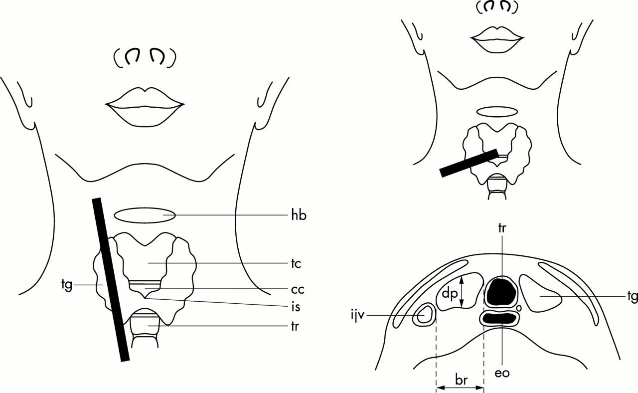 download figure open in new tab download powerpoint figure 1 diagram of thyroid gland  [ 1280 x 788 Pixel ]