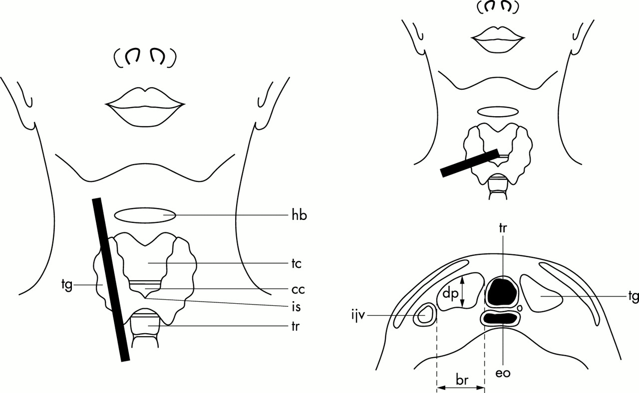 medium resolution of download figure open in new tab download powerpoint figure 1 diagram of thyroid gland