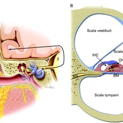 Ear Tympanic Membrane Diagram How To Draw Stem And Leaf Hearing Loss In Children With Very Low Birth Weight