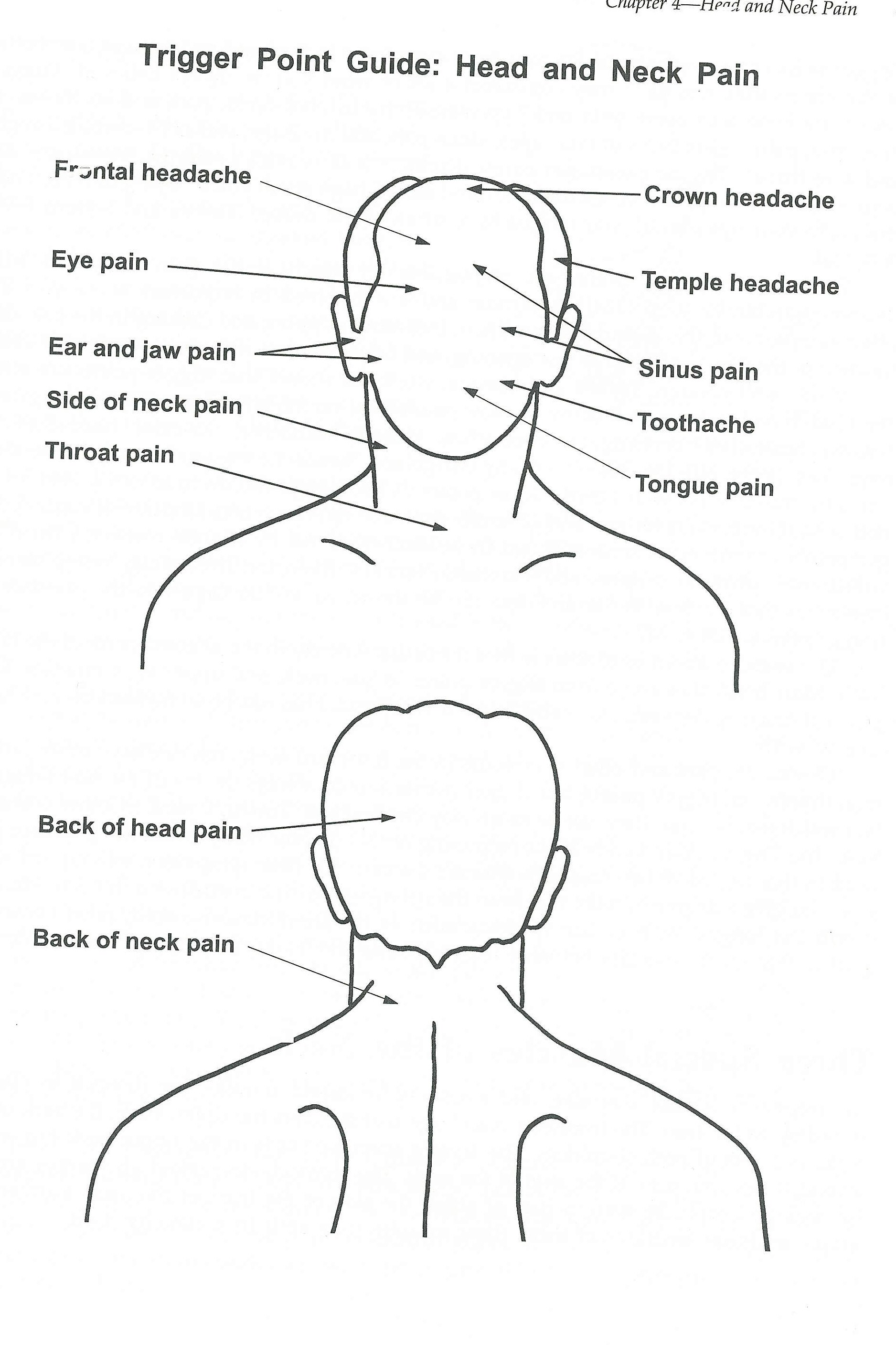 Trigger Point Info