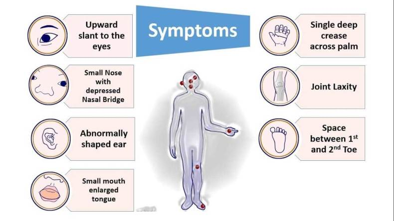 Down Syndrome Symptoms