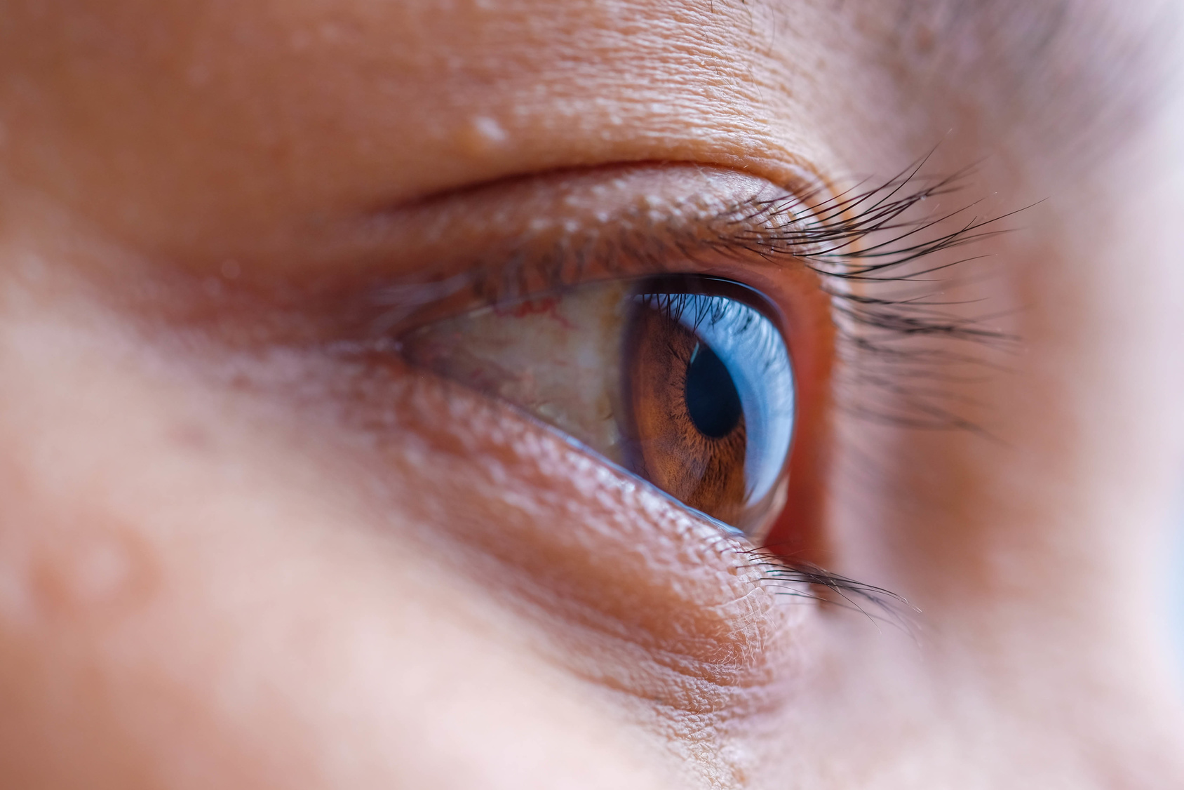 Could Your Watery Eyes Be A Sign Of A Blocked Tear Duct Focus A Health Blog From Mass Eye And Ear
