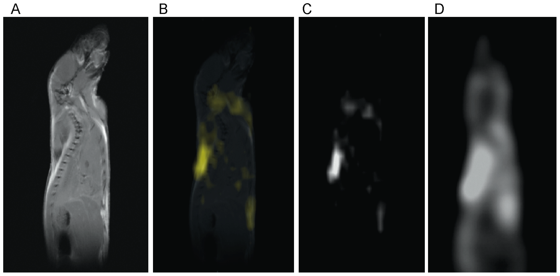 In Vivo Noninvasive Detection Of Brown Adipose Tissue Through Intermolecular Zero Quantum Mri