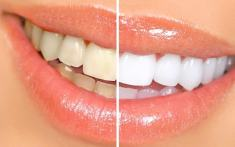 Whiten Teeth Naturally