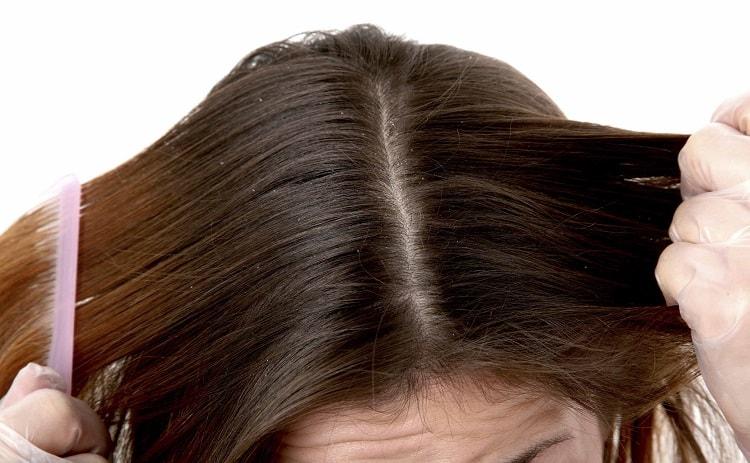 dry scalp