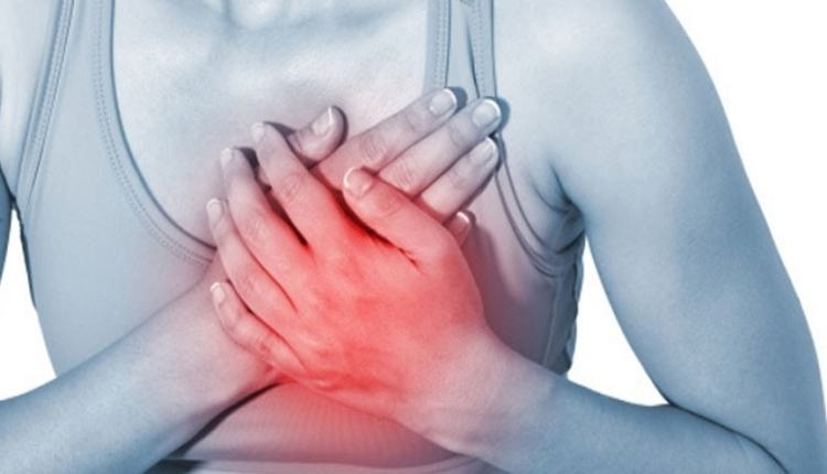 Heartburn & Severe Acid Reflux