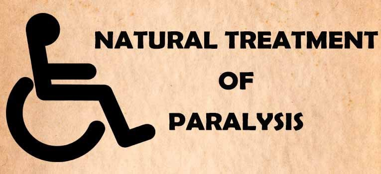 Paralysis for Home Remedies