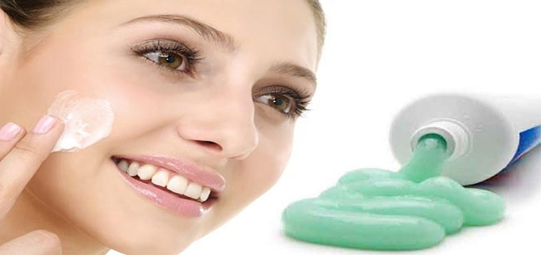 How to get rid of acne with toothpaste