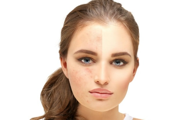 8 effective natural diy homemade face masks for acne scars homemade face masks for acne scars solutioingenieria Gallery
