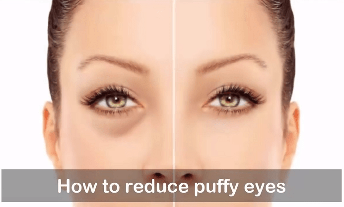 Natural Treatments For Bags Under Eyes