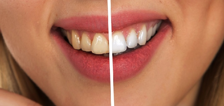 Remedies for Removing Plaque and Tartar from Teeth Naturally