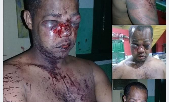 Polícia espanca homem em Andaraí: População se revolta e exige justiça