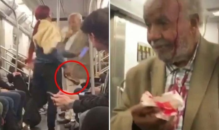 Agressora [à esquerda] e idoso ensanguentado após ser agredido [à direita]. (Foto: Reprodução/CBS)