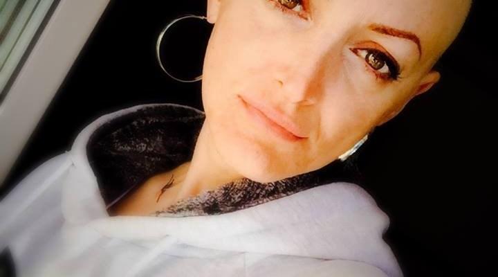 donna ares posle hemoterapije