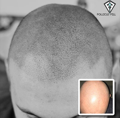 Scalp Micropigmentation Pasadena CA