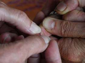 How to safely remove splinters