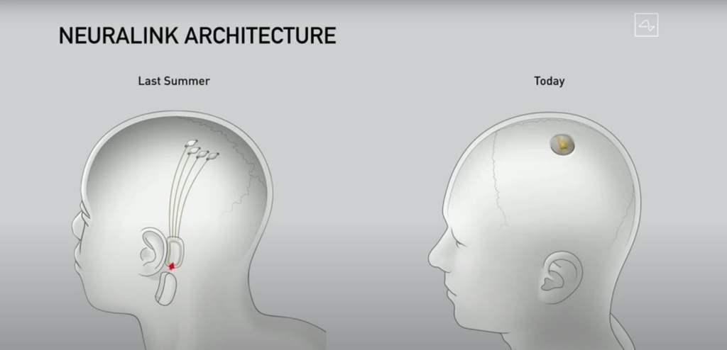 arquitectura de Neuralink