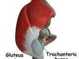 Bursitis Trocantèrea