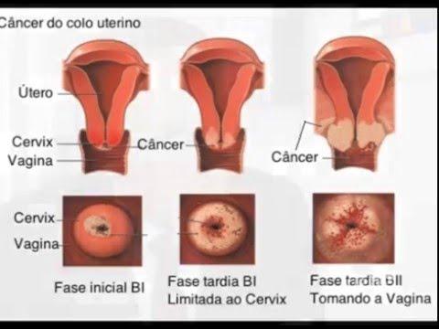 cancer hpv - HPV: Causas, Sintomas e Prevenção