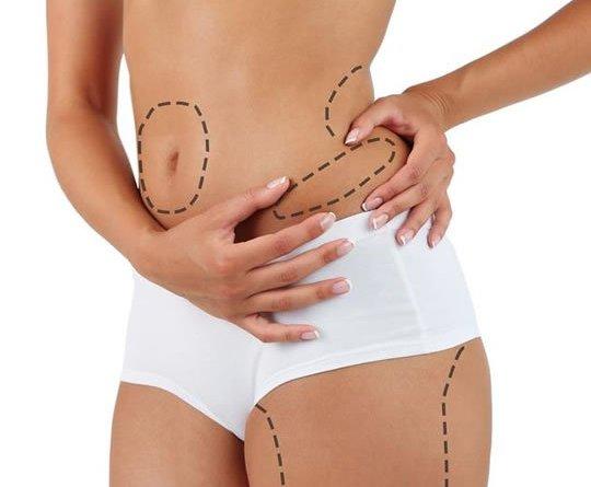 lipoaspiração 1 - Lipoaspiração: Mitos e Verdades Sobre Esse Tipo de Cirurgia Estética