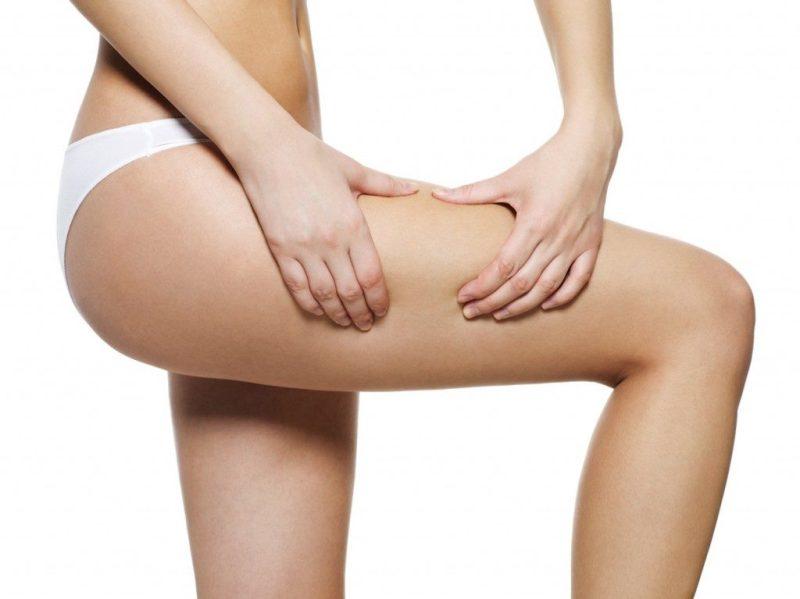 lipoaspiração 2 1024x767 - Lipoaspiração: Mitos e Verdades Sobre Esse Tipo de Cirurgia Estética