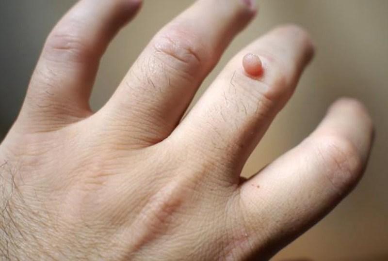verruga hpv - HPV: Causas, Sintomas e Prevenção
