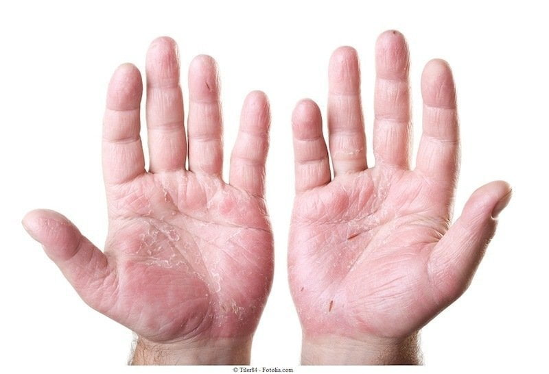 dermatite de contato - 7 Problemas de Pele Mais Frequentes: saiba quais são