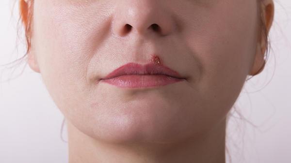 problemas de pele mais frequentes 3 - 7 Problemas de Pele Mais Frequentes: saiba quais são