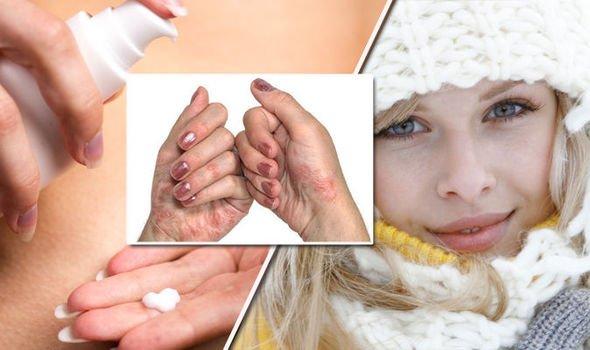 pele no inverno