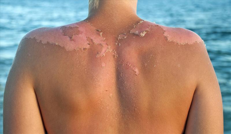 queimadura de sol - 7 Problemas de Pele Mais Frequentes: saiba quais são