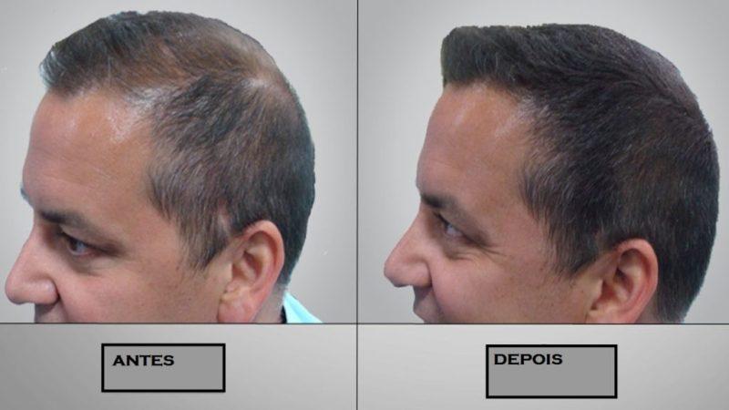 tratamento calvície e queda de cabelo 2 1024x576 - Calvície e queda de cabelo: causas, sintomas e tratamentos