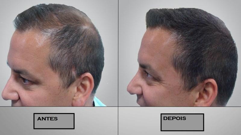 tratamento calvície e queda de cabelo 2 - Calvície e queda de cabelo: causas, sintomas e tratamentos