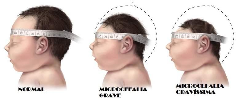 microcefalia 3 - Microcefalia: Causas? Diagnóstico? Tem tratamento?