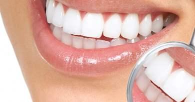 1 18 - O que é implante dentário? Por que fazer? Quanto custa?