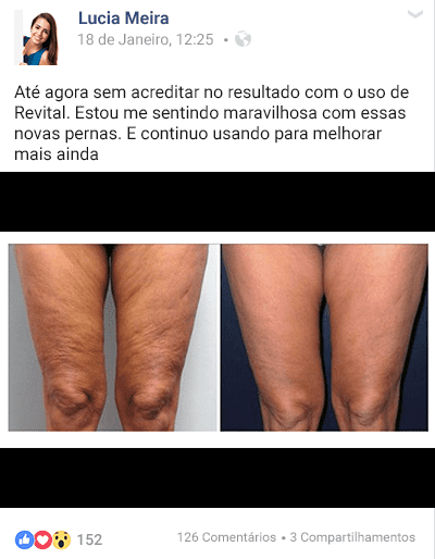 Fonte da Saude Revital depoimento Lucia Meire - Revital Funciona Mesmo? Como Acabei com a Celulite! - Segredo das Famosas!