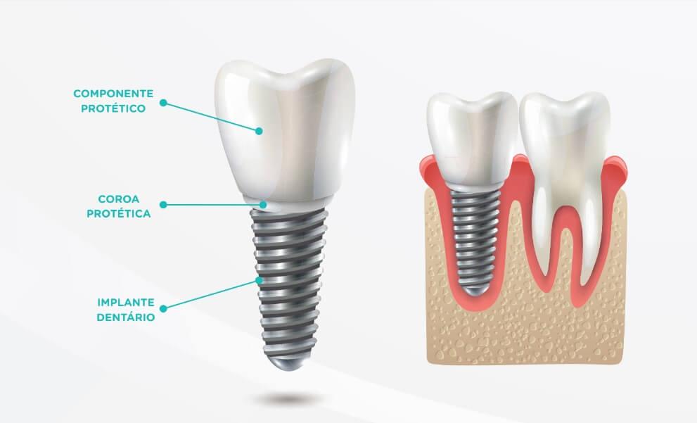 O que é implante dentário