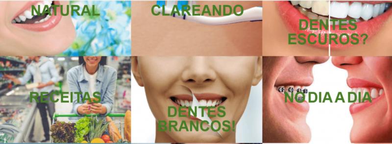 fonte da saude Clareamento Dental Natural aprenda como clarear os dentes 1024x376 - Benefícios do Clareamento Dental - Sorriso Bonito e Dentes Saudáveis Sempre