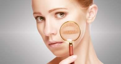 1 - Problemas de pele no verão: saiba quais são e quando se preocupar