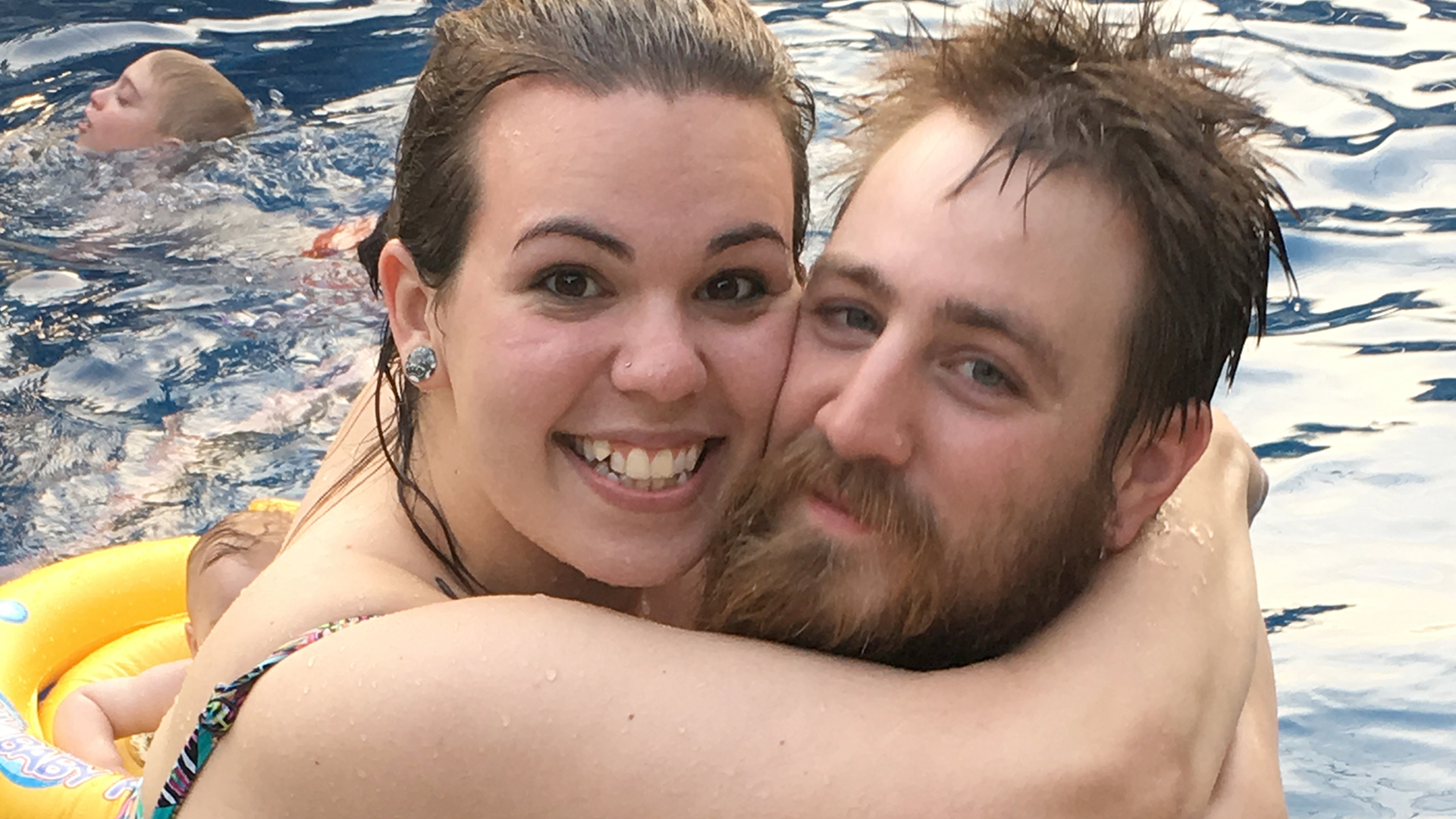 Couple Snaps Happy Photo, Then People Notice Sagging Skin On Her Belly — But She Doesn't Care