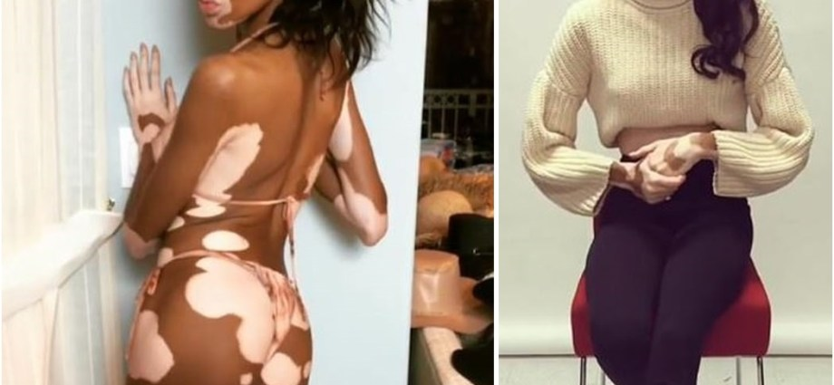 Winnie Harlow becomes the first ever model with vitiligo to pose for Sports Illustrated Swimsuit