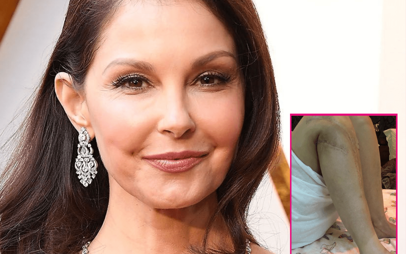Ashley Judd Share Photos Of Her Scars And Broken Leg Recovery Progress