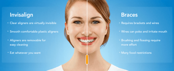 nvisalign Advantage_Over_Braces