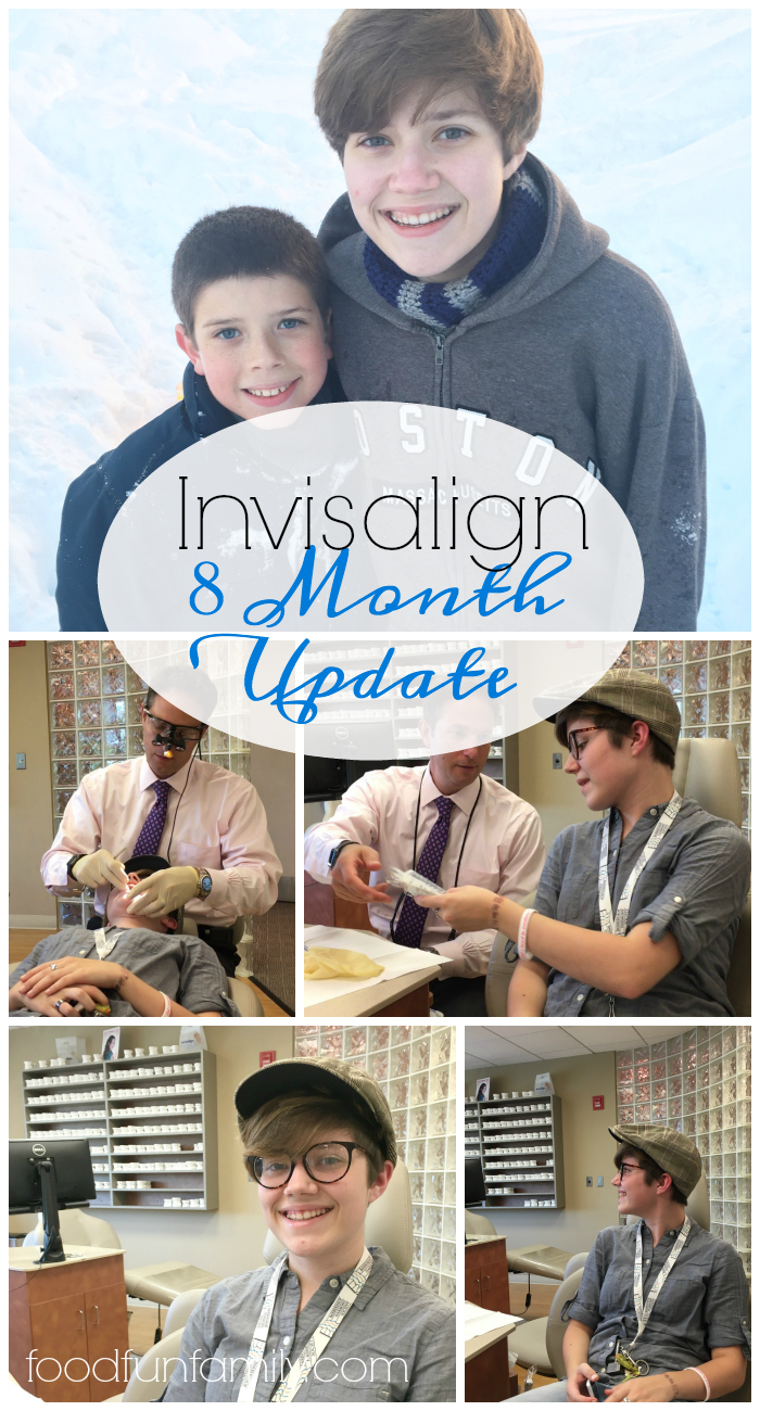 Wondering what it's like to have Invisalign for yourself or one of your kids? Here's my daughter's 8 month update with Invisalign aligners (and my 8 month mark as a member of the Invisalign Mom Advisory Board)