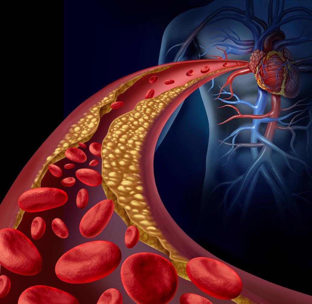 動脈阻塞圖