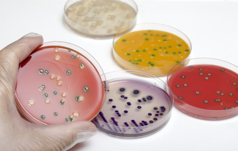 Technical Tuesdays: Where is Listeria Lurking in The Food Industry?