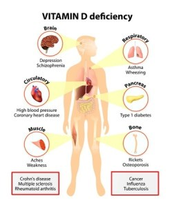 42801714 - vitamin d deficiency. symptoms and diseases caused by insufficient vitamin d. symptoms & signs. human silhouette with highlighted internal organs