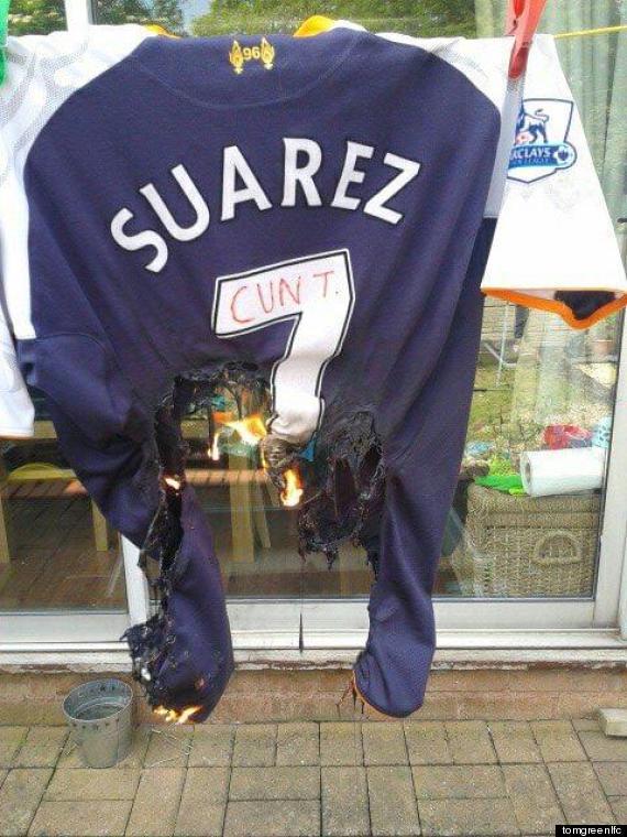 Luis Suarez shirt burn