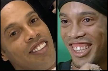 Ronaldinho's teeth are fixed