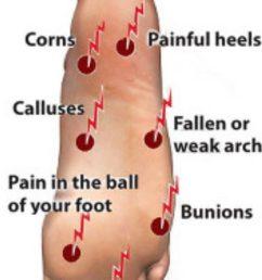 diagram of big toe pain [ 1280 x 720 Pixel ]