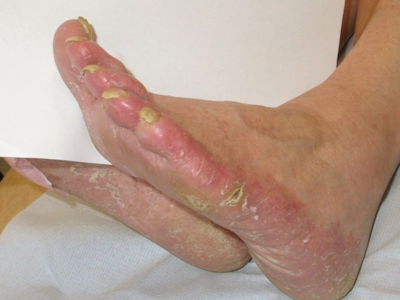 I've Got An Itch To Scratch: Athletes Foot (Tinea Pedis) – FootNotes Publishing